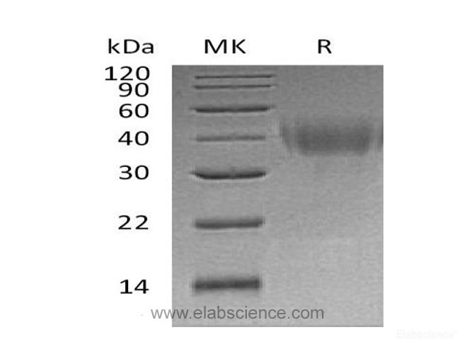 Recombinant Human PD-L2 / B7-DC / CD273 Protein (C-His)-Elabscience