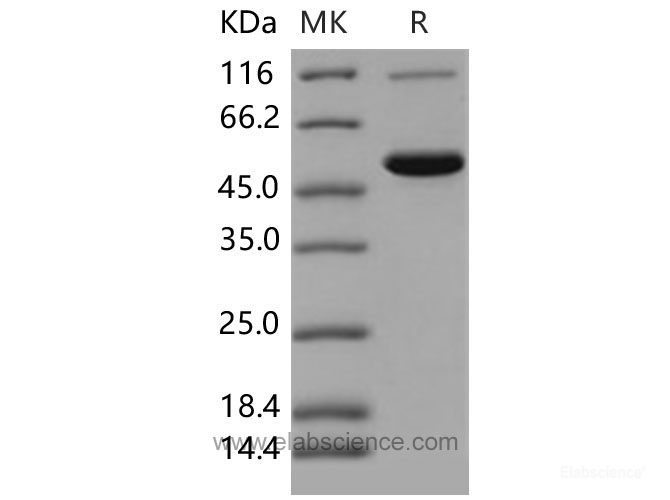 Recombinant Mouse CES2 / Carboxylesterase-2 Protein (His tag)-Elabscience