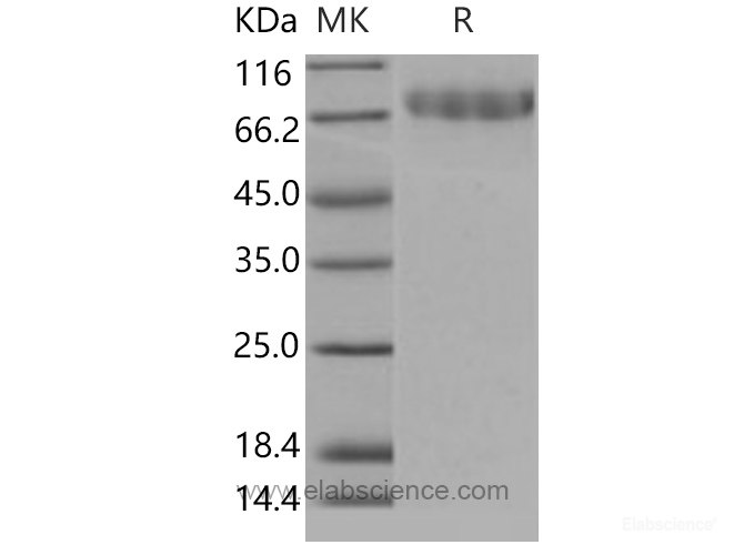 Recombinant Mouse CLEC14A / EGFR-5 Protein (His tag)-Elabscience