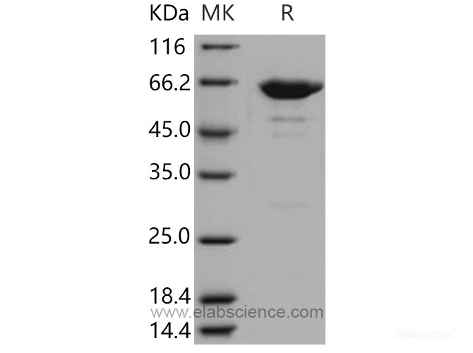 Recombinant Mouse Leukotriene A4 Hydrolase / LTA4H Protein (His tag)-Elabscience
