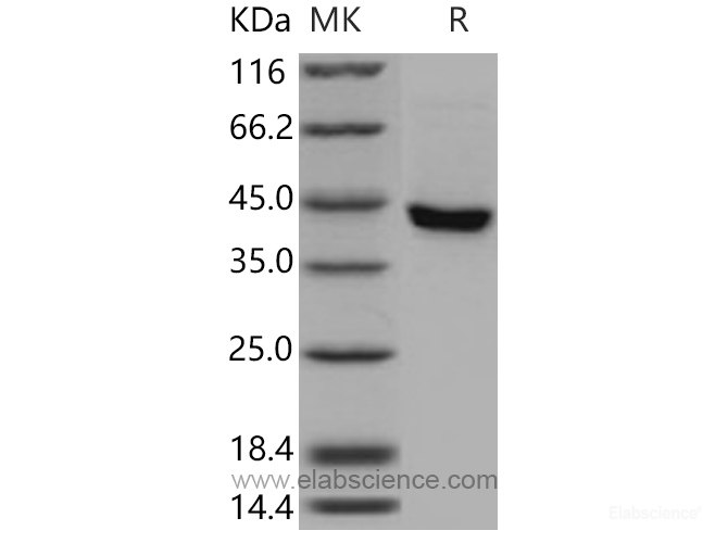 Recombinant Mouse SerpinB8 Protein (His tag)-Elabscience