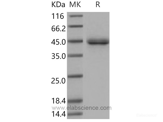 Recombinant Mouse SFTPD / SP-D / SFTP4 Protein (His tag)-Elabscience