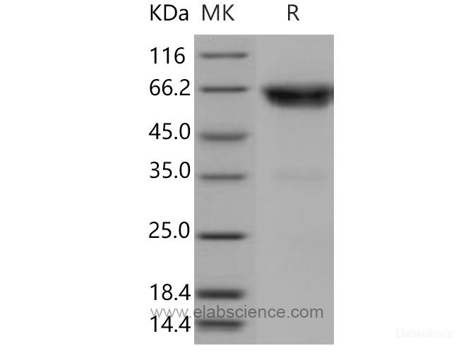 Recombinant Mouse TNFR2 / CD120b / TNFRSF1B Protein (Fc tag)-Elabscience