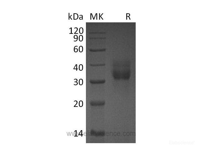 Recombinant Mouse Cathepsin B Protein-Elabscience