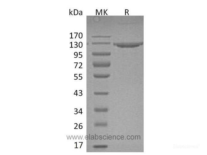 Recombinant Mouse VCAM-1 / CD106 Protein (C-Fc)-Elabscience
