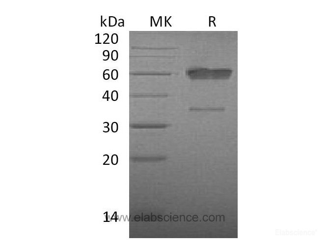 Recombinant Mouse CD83 / HB15 Protein (C-Fc)-Elabscience