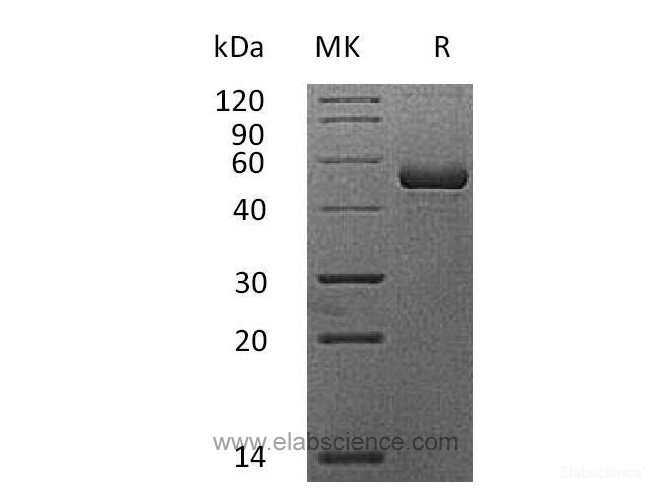 Recombinant Mouse APRIL / TNFSF13 / CD256 / TALL2 Protein (N-Fc)-Elabscience