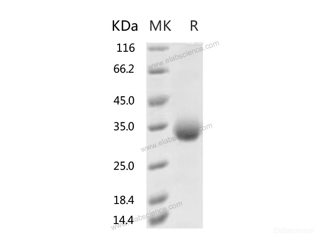 Recombinant 2019-nCoV Spike Protein (RBD, His Tag)(N354D)-Elabscience