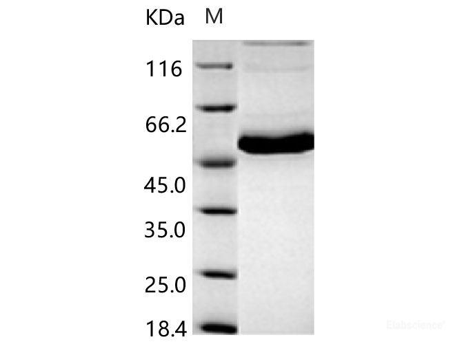 papilloma virus 33